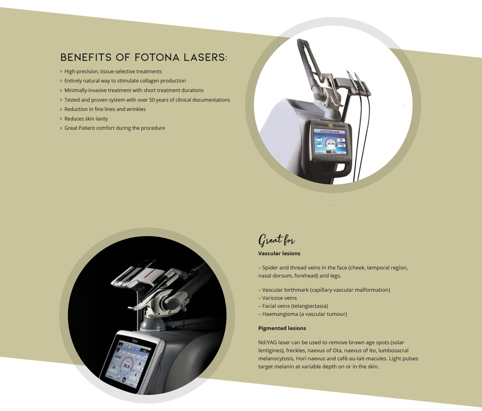 Benefits of FOTONA Lasers